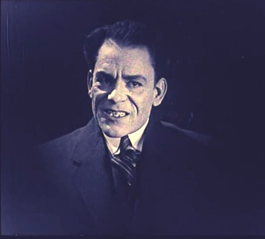 Lon-Chaney-in-The-Penalty-1920-15